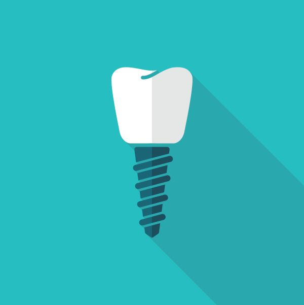 Facts You Should Know About Dental Implants
