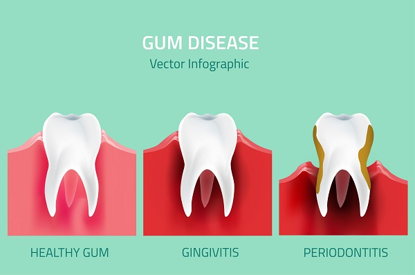 Are Gum Disease And Gingivitis The Same Thing?